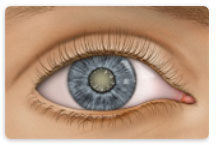 Learn about Cataract at New Westminster Optometry Clinic