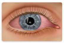 Learn about Conjunctivitis at New Westminster Optometry Clinic