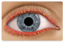 Learn about Blepharitis at New Westminster Optometry Clinic